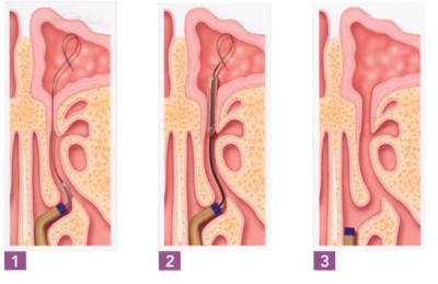 Balloon sinuplasty is sinus surgery without incisions.
